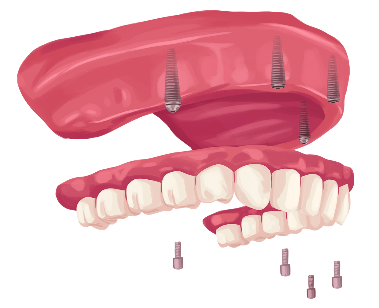 How much are dental implants? - G4 by Golpa